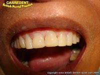 Carredent British Dental Practice